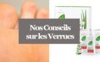 Verrue - Comment traiter une verrue avec l'Aloé Vera?