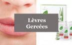 Lèvres gercées - Comment soigner des lèvres gercées avec l'Aloé vera?