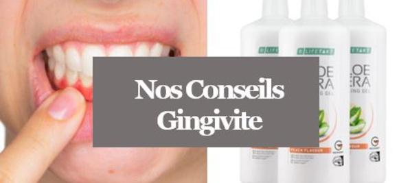 Gingivite - Soulager une Gingivite avec l'Aloé Vera
